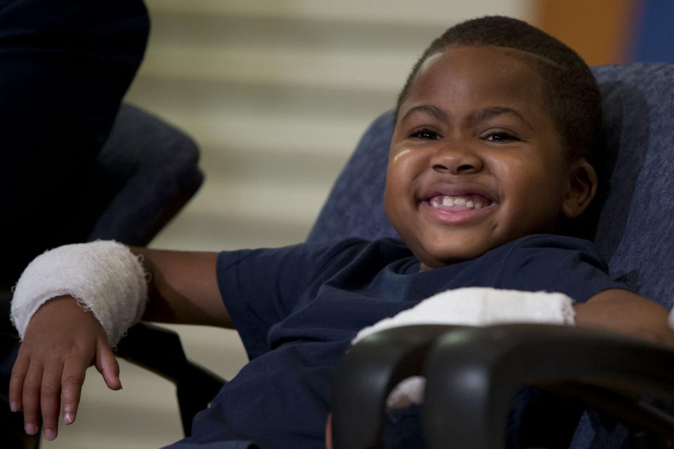 Double-hand transplant recipient eight-year-old Zion Harvey smiles during a news conference Tuesday, July 28, 2015, at The Children's Hospital of Philadelphia (CHOP) in Philadelphia. Surgeons said Harvey of Baltimore who lost his limbs to a serious infection,  has become the youngest patient to receive a double-hand transplant. (AP Photo/Matt Rourke)